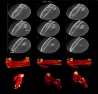 Foto Sialolito de Grandes Dimensões no Ducto da Glândula Submandibular: Relato de Caso